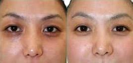 彩光嫩膚去黑眼圈的成功案例