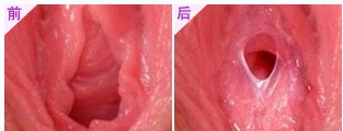 处女膜修复术的成功案例