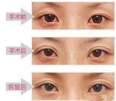 双眼皮失败修复术的成功案例