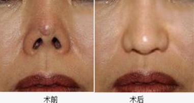 隆鼻膨體取出的的成功案例