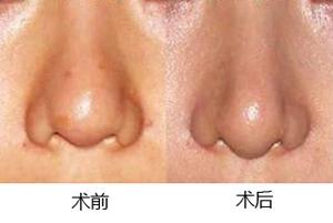 鼻小柱延长整形术成功案例