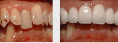 种植牙成功案例