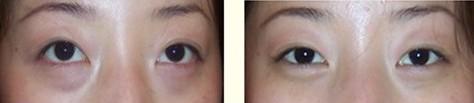 经皮肤入路法去眼袋的成功案例