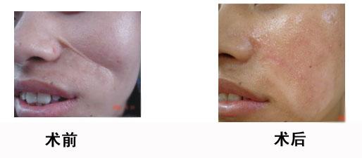 面部瘢痕修复的成功案例