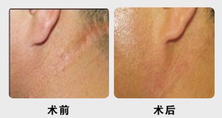 疤痕修复手术成功案例