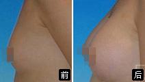 自体干细胞隆胸的成功案例