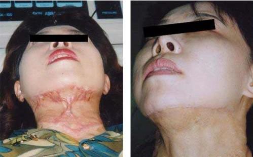 植皮术成功案例