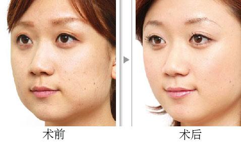 注射瘦脸成功案例