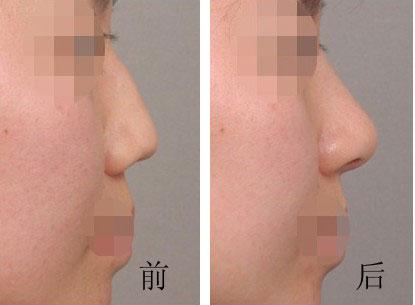 驼峰鼻矫正的成功案例