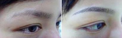 立体纹眉术的成功案例