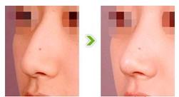 闭式鼻整形的成功案例