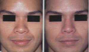 开式鼻整形的成功案例