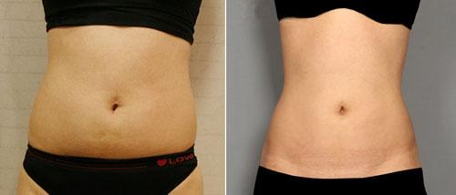腹部吸脂减肥成功案例