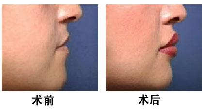 玻尿酸丰唇成功案例