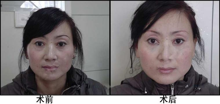眼袋祛除术成功案例