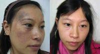 太田痣治疗的成功案例