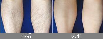 腿毛种植成功案例