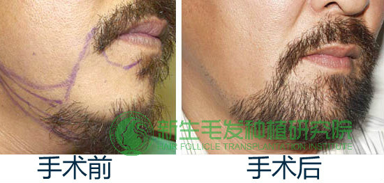 胡须移植成功案例