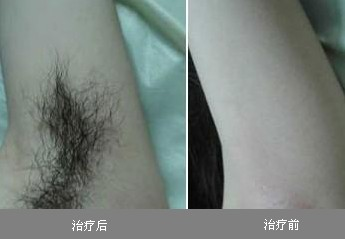 腋毛种植成功案例