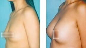 活力脂肪丰胸的成功案例