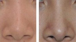 黄金A型隆鼻术的成功案例