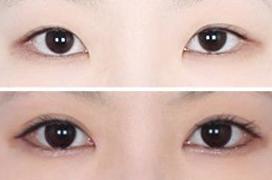 美式冰点翘睫双眼皮手术的成功案例