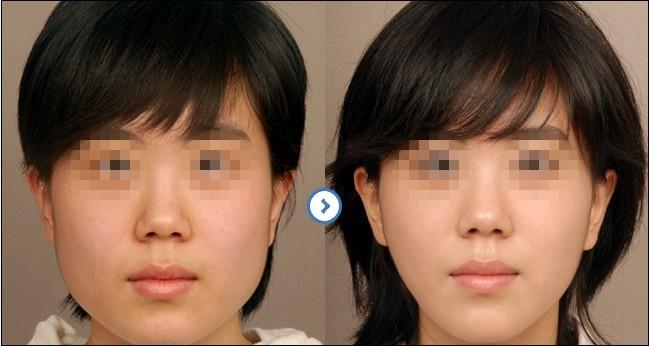 30分钟极速改脸型的成功案例