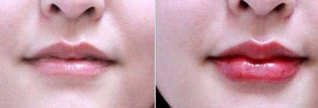 纹唇成功案例