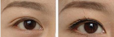 纹眼线成功案例