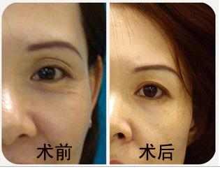 双眼皮修复术成功案例