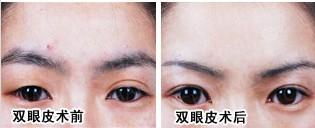 切开式双眼皮成功案例