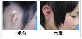 耳再造成功案例