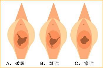韓式微創處女膜再造術成功案例