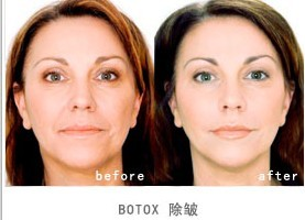 保妥适(Botox)成功的案例