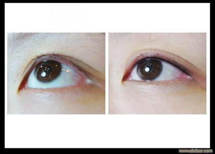 纹眼线的成功案例