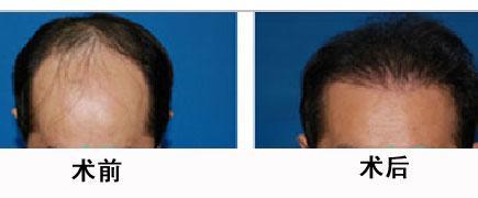 毛发移植手术的成功案例