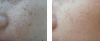 激光治疗收缩毛孔的成功案例