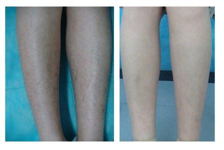 激光脱腿毛成功案例