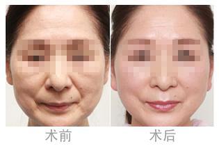 面部提升除皱的成功案例
