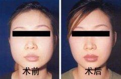 面部吸脂成功案例