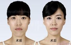 下颌角整形术的成功案例