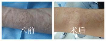 烧伤疤痕修复的成功案例