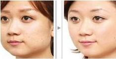 改脸型手术成功案例