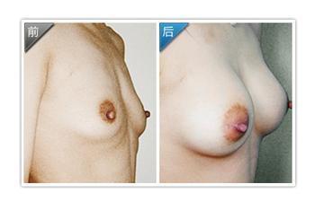 个性化隆胸成功案例