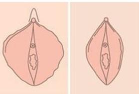 韩式微创小阴唇整形术成功的案例