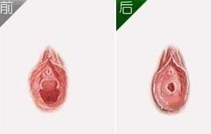 韩式阴蒂整形手术成功的案例