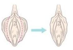 阴道再造术手术成功的案例