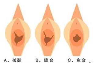 韩式微创处女膜修复手术成功的案例