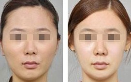 注射瘦脸的成功案例
