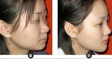 面部吸脂的成功案例
